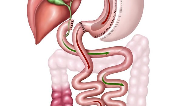 Duodenal Switch Surgery in Tijuana Mexico