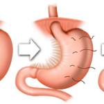 gastric-plication_500
