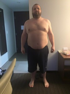 Before Surgery: 307 Pounds (day before surgery)